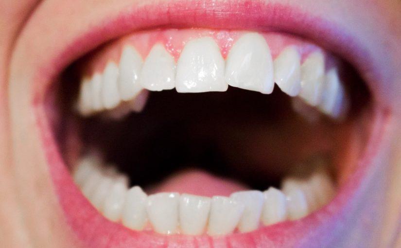 Dzisiejsza technologia używana w salonach stomatologii estetycznej może spowodować, że odbierzemy ładny uśmieszek.